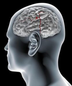 brain aneurysm signs and symptoms