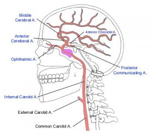 Kaley Scranton brain aneurysm