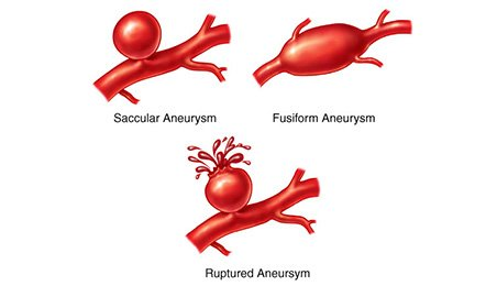 types of cerebral aneurysms